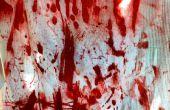 Ropa con sangre