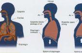Cómo curar el hipo