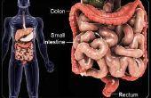 EII: La cura para el Crohn y la Colitis Ulcerativa