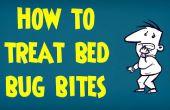 Cómo tratar las picaduras de chinches de cama | Tratamiento de las picaduras de bichos e insectos