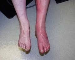 problemas relacionados con la piel con diabetes